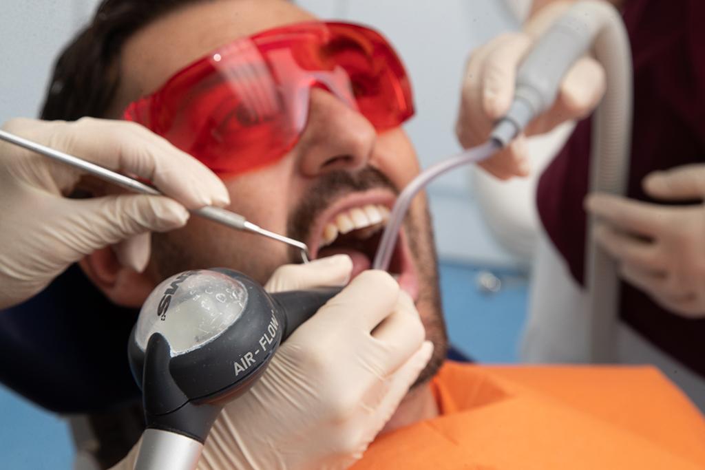 igiene dentale